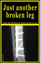 Unfortunately, on January 14, 1979, Spyros Peter Goudas describes a terrible accident in which he crushed his leg befell him resulting in financial ruin through a recall of a bank loan.  These events are portrayed in the book, Just another Broken Leg.
