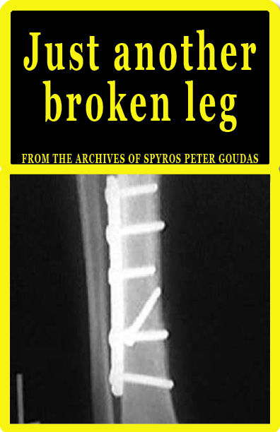 This book titled, Just Another Broken Leg, written by Spyros Peter Goudas is testimony of the events that occurred in 1979 when Spyros Peter broke his leg and the Bank prematurely recalled his loan.